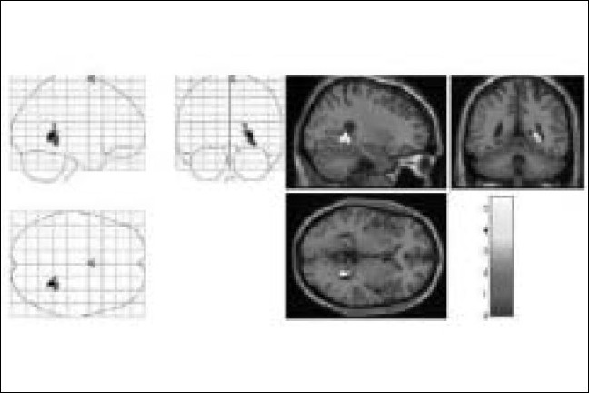 Figure 3 :Right Parahippocampal Gyrus Activation in the subject with telepathic ability [Mr. GS], while performing a successful telepathic task. On the left hand side, the activation is superimposed on a glass brain and on the right hand side, the activation [yellow] is superimposed on a structural MR image