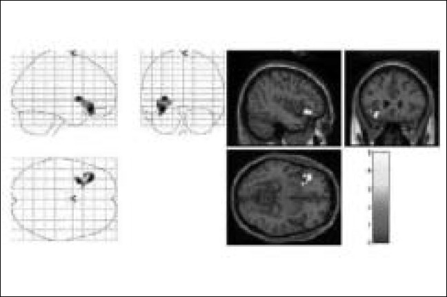 Figure 4 :Left Inferior Frontal Gyrus Activation in the control subject without any telepathic ability [Mr. JS], while performing an unsuccessful telepathic task. On the left hand side, the activation is superimposed on a glass brain and on the right hand side, the activation [yellow] is superimposed on a structural MR image