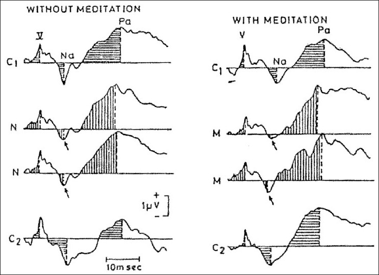 Figure 1 :Experienced meditattors versus non-meditators:Importance of motivation. (Typical example of AEP-MLRs during meditation in an experienced subject (left,12 years experience) and a novice (right, 10 days experience). Telles et al. 1994, Internal J. Neurosci.)