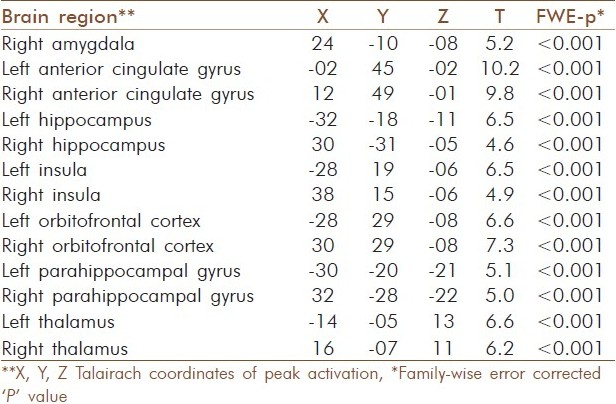 Table 1: Brain regions with significant deactivation during 'OM' condition in comparison with