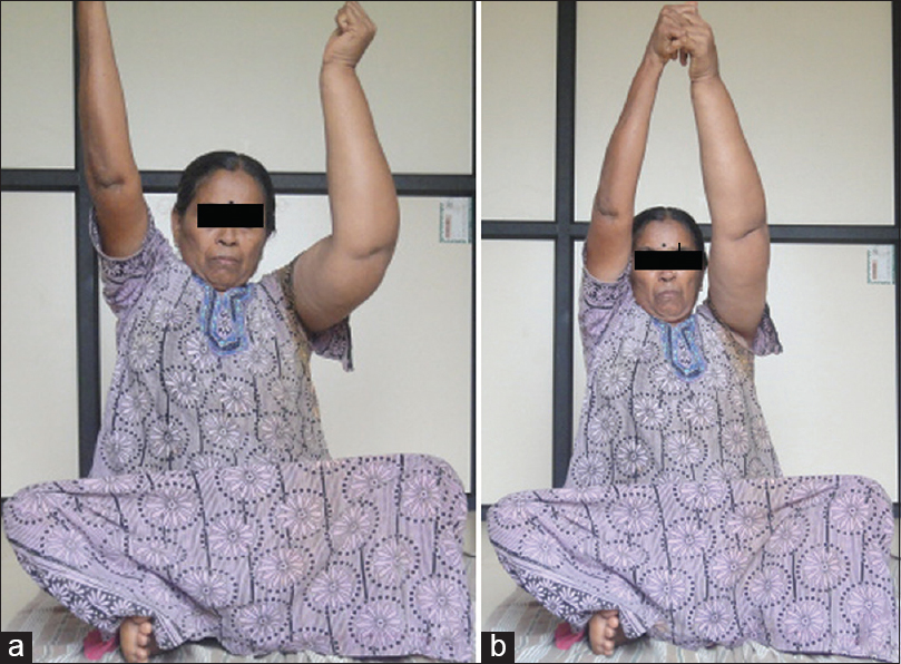 Figure 2: Rajjukarshana asana in upper-limb lymphedema patients: (a) Inability to flex the affected shoulder joint due to the weight and restricted shoulder movements. (b) Alternate yoga position by holding affected limb with unaffected limb