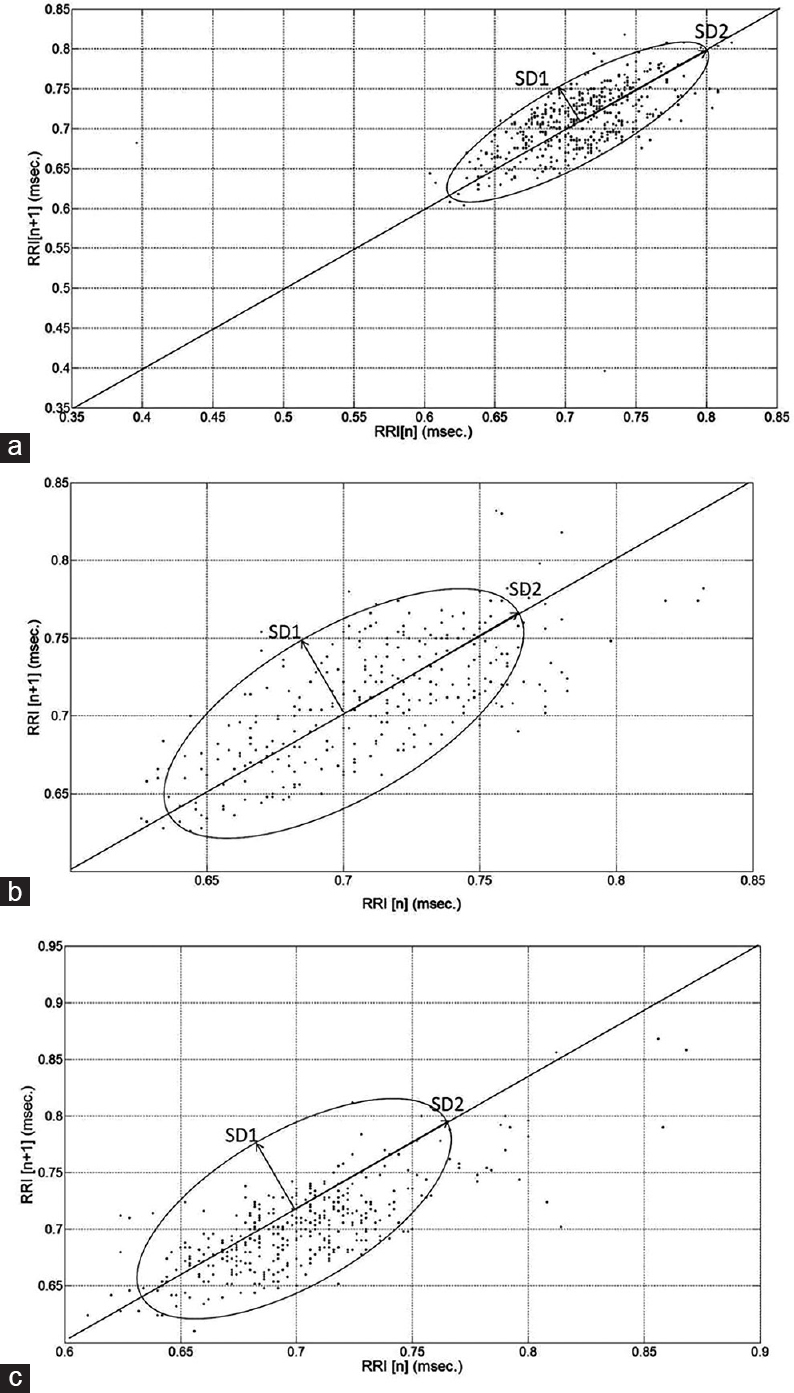 Figure 6: (a) Standard Poincare plot (b) Poincare plot before Sudarshan Kriya Yoga (c) Poincare plot after Sudarshan Kriya Yoga