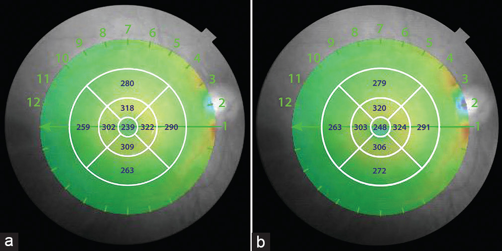 Figure 1: Macular thickness map of the right eye, at presentation (a) and after yoga exercise for eyes (b). Central retinal thickness increased from 239 μm at presentation (a) to 248 μm after yoga exercises for eyes (b). Average retinal thickness increased from 280.9 μm at presentation (a) to 283.6 μm after yoga exercises for eyes (b)